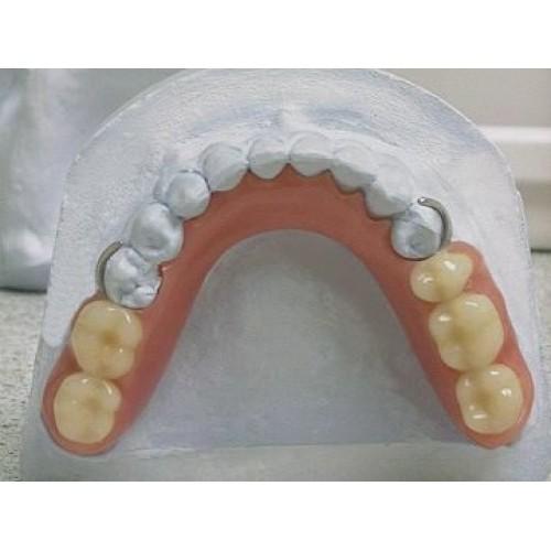 Partially removable denture