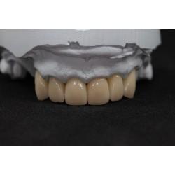 Temporary crowns CAD / CAM