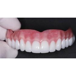 Denture on a titanium composite frame